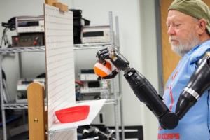 protesi intelligenti