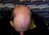alopecia androgenica